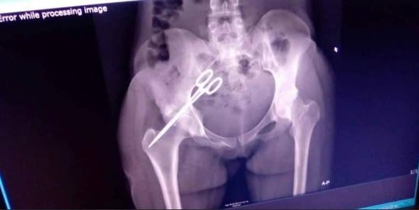 Scissors Removed From Stomach